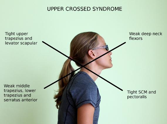 upper-crossed